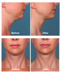 Kybella Before and After Photos
